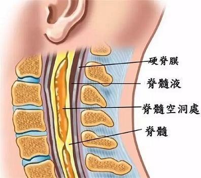 当心!这些症状是脊髓在报警,严重可致瘫痪……