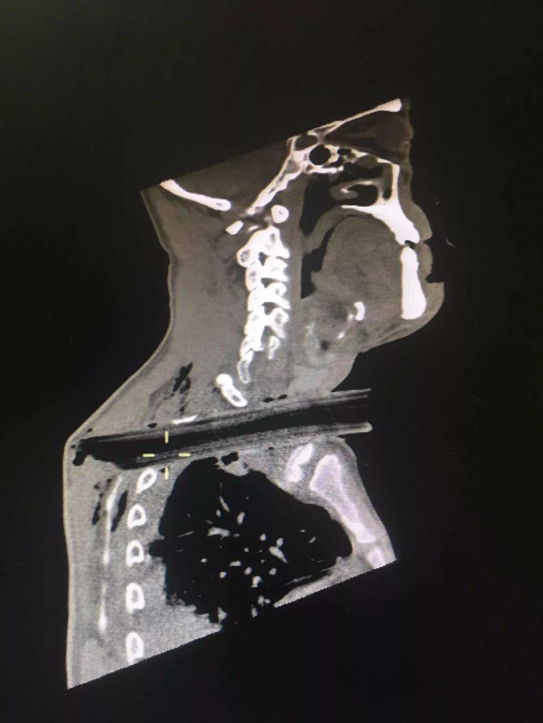 兖州一男子被20厘米长的树枝横穿颈部 经10小时手术成功脱险